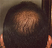 Hair loss before laser brush therapy.