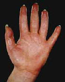 Hyperhidrosis sweating of the hands.